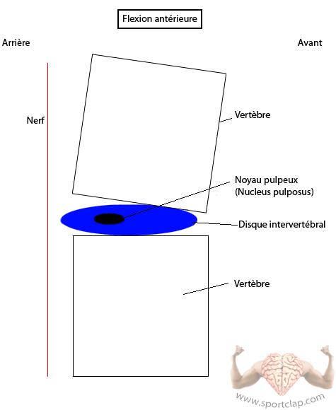 La colonne vertébrale : réaction du disque intervertébral et position des vertèbres lors d'une flexion du dos rachis (se pencher vers l'avant)